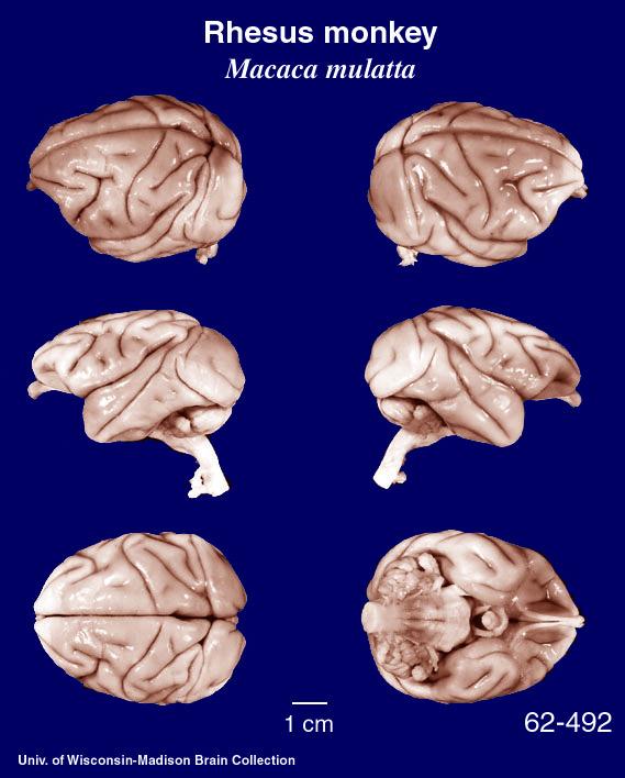 Neocortex: Telencphalon