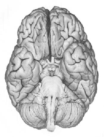 Language and Brain: Pictures of the Whole Brain